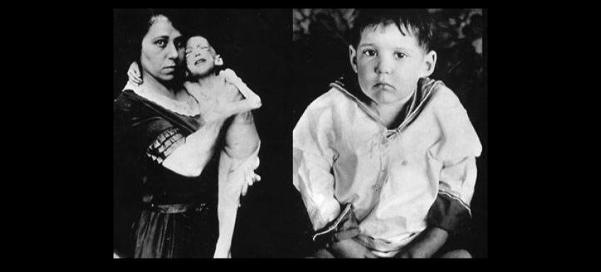 Photo montrant un jeune garçon diabétique de type 1 avant et un mois après le début des injections d'insuline. Avant les injections, le jeune garçon est extrêmement maigre. Un mois après le début des injections il n'est plus du tout maigre.
