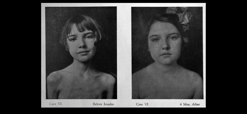 Photo montrant une jeune fille diabétique de type 1 avant et 4 mois après le début des injections d'insuline. Avant les injections, la jeune fille est extrêmement maigre. 4 mois après le début des injections elle n'est plus du tout maigre.
