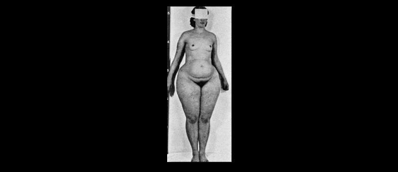 Photo montrant une femme qui est maigre sur le haut du corps, mais en surpoids sur le bas du corps.